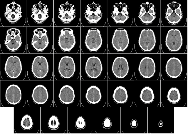 Computed_tomography_of_human_brain_-_large